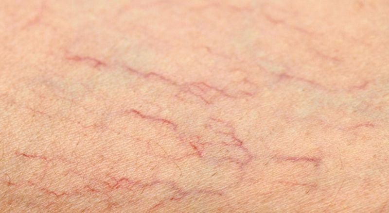 Hiện tượng bị vỡ mạch máu dưới da là gì? Có gây nguy hiểm gì không? Nội dung bài viết dưới đây sẽ giúp bạn giải đáp thắc mắc cũng như cách khắc phục....